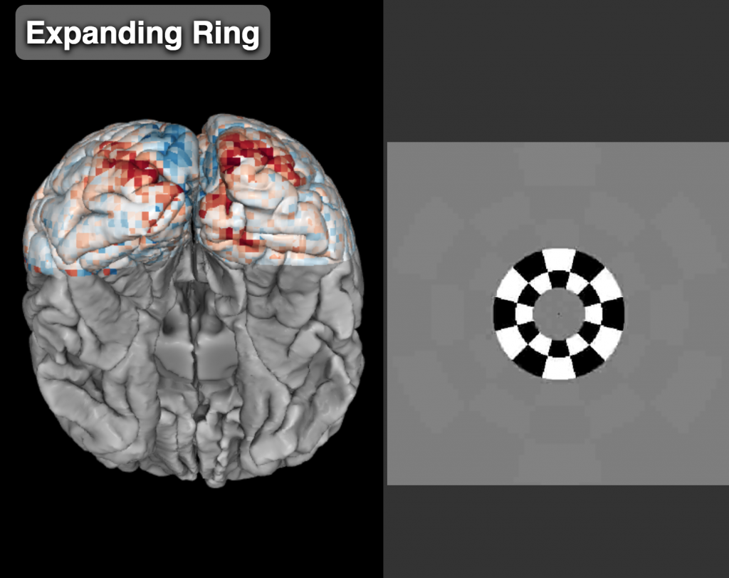 Left panel shows a posterior view of a brain with activity overlaid on it and shown in red. The activity pattern approximately forms a circle around the occipital pole (the back end of the brain). The right panel shows the stimulus that elicited this activity. The stimulus is a checkered annulus near the center of a gray screen.