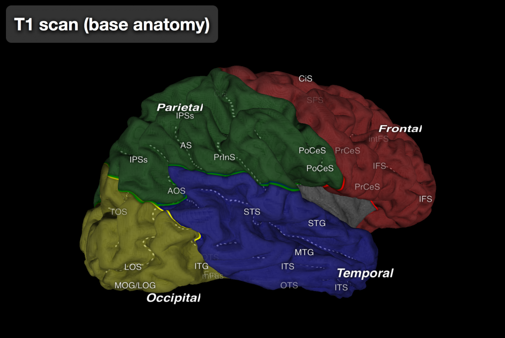A brain, with the four lobes each highlighted in different colors. The occipital lobe (back part of the brain) is yellow, the parietal lobe (upper back part of the brain) is green, the temporal lobe (lateral part, near the ears) is blue, and the frontal lobe is red. The link leads to an interactive plot of the brain that can be manipulated in 3D, including expanding the cortical surface such that brain area deep in sulci is visible, as well as flattening out the surface of the brain so that all the cortex is visible at once. Major sulci and a few regions of interest are labeled in the interactive viewer.  [DISCLAIMER?]